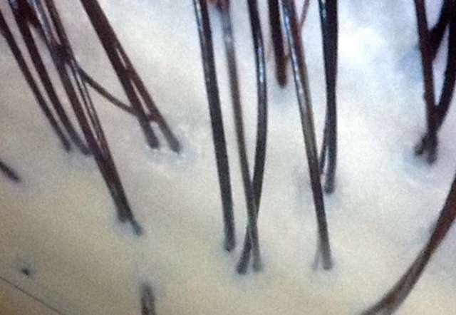二戸 to/DA natural hair マイクロスコープで頭皮の汚れも確認できます。 \650